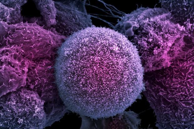 какво представлява рака
